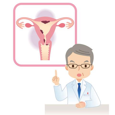 子宮頸がん